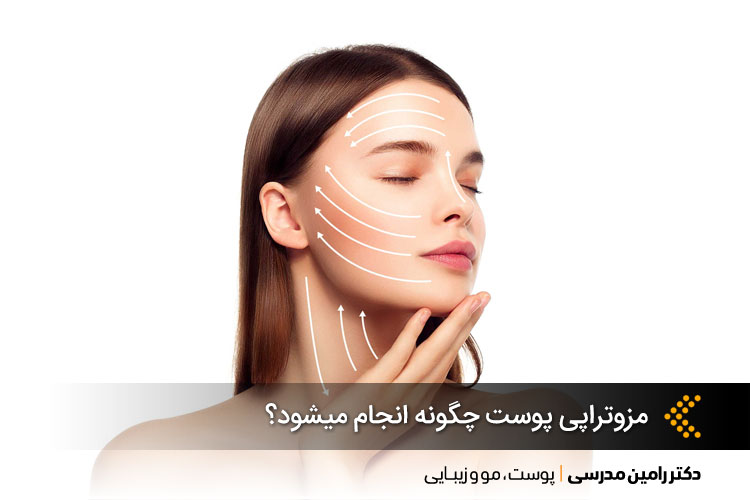 مزوتراپی پوست چگونه انجام میشود؟