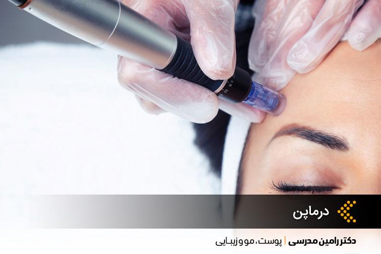 درماپن، روشی موثر برای درمان بسیاری از مشکلات پوستی