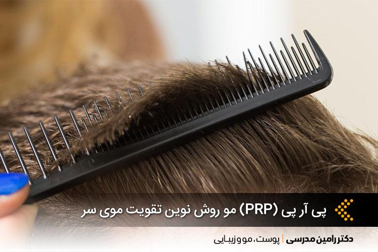 پی آر پی (PRP) مو