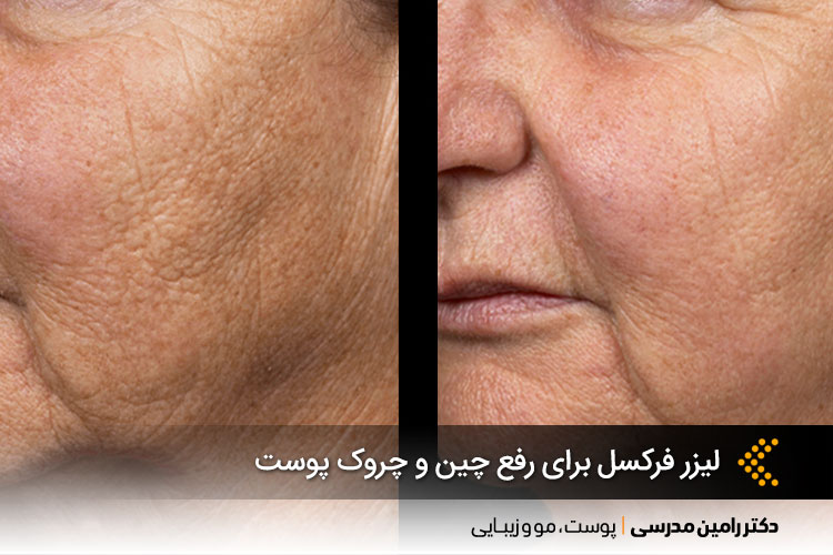 جوانسازی پوست با لیزر فرکسل