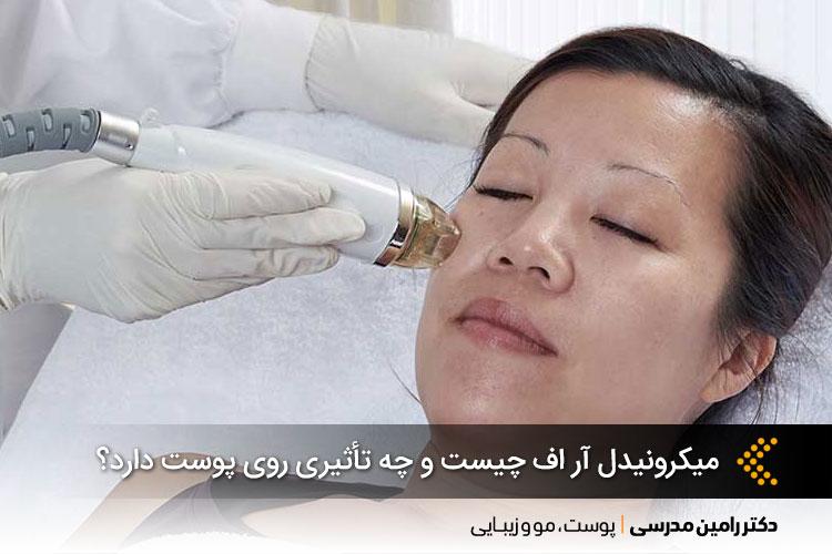 میکرونیدل آر اف چیست و چه تأثیری روی پوست دارد