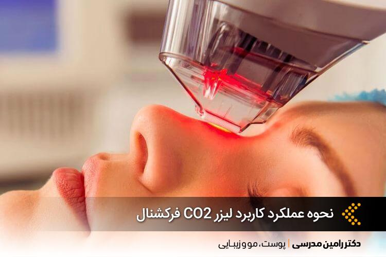 لیزر CO2 فرکشنال