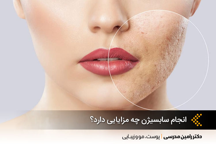 سابسیژن پوست