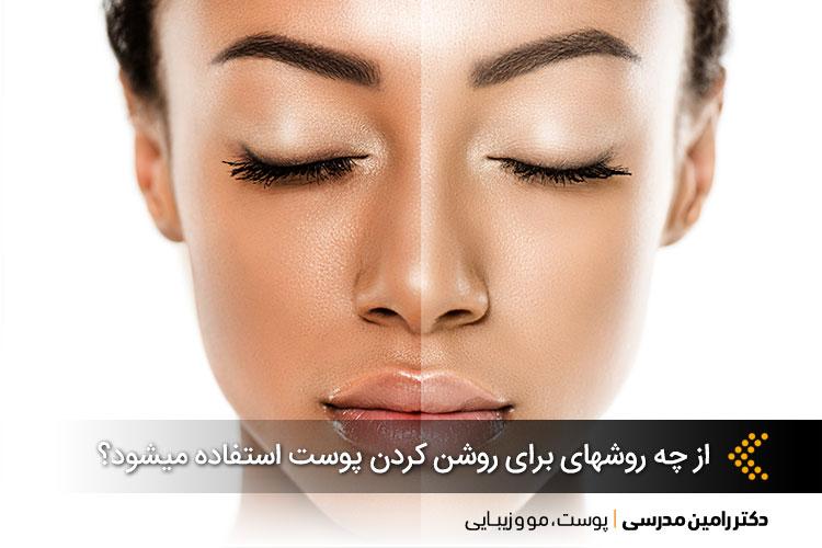 روشنسازی پوست