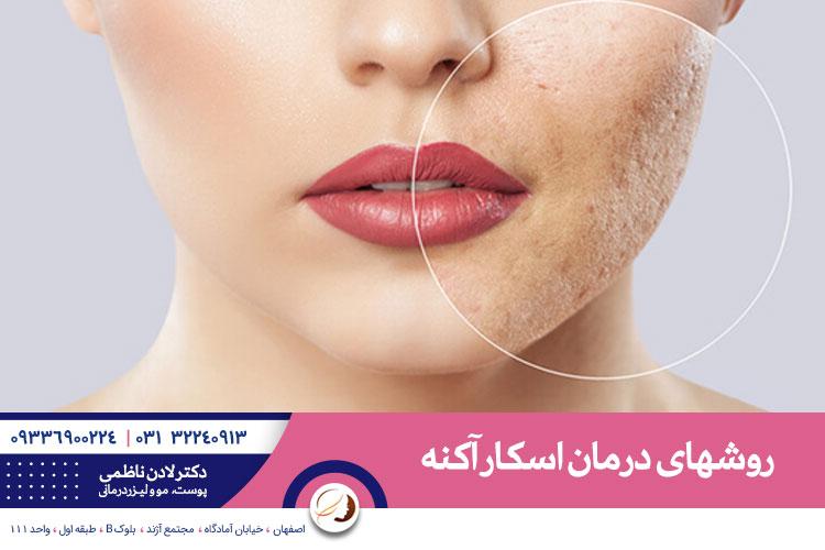 درمان اسکار آکنه در اصفهان