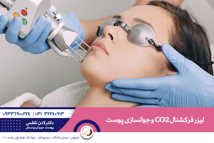 لیزر فرکشنال ، درمان جای جوش و جوانسازی | بهترین دکتر پوست اصفهان