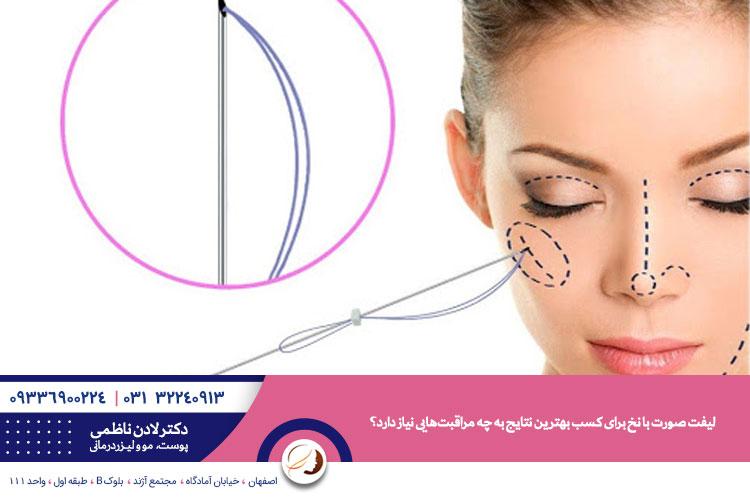 مراقبت های قبل و بعد از لیفت با نخ | لیفت یا کشیدن پوست با نخ در اصفهان