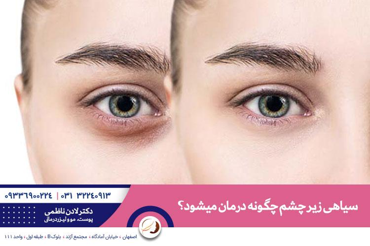 بهترین درمان سیاهی زیر چشم در اصفهان