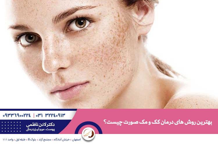 بهترین درمان کک و مک | دکتر پوست خوب در اصفهان