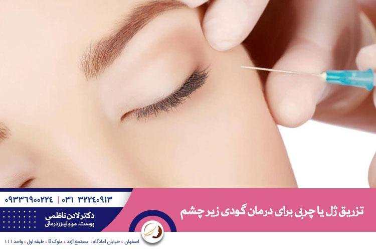 تزریق ژل یا چربی برای درمان گودی زیر چشم