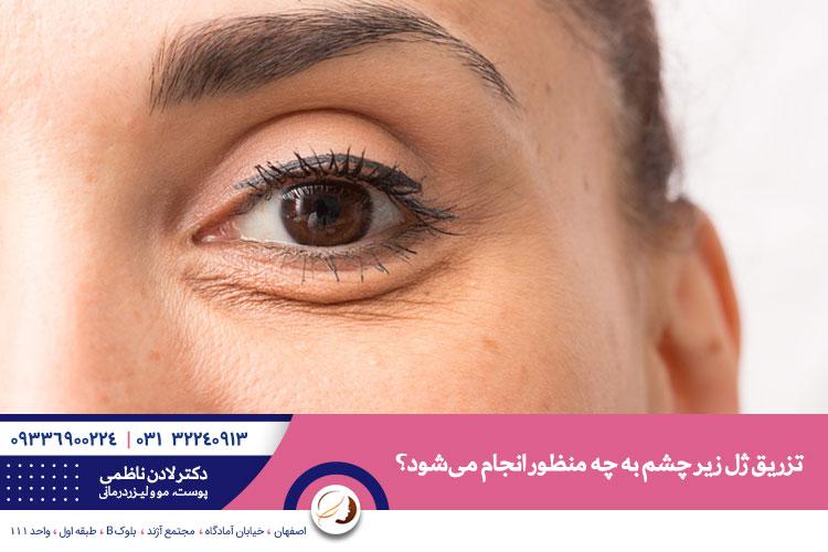 تزریق ژل زیر چشم | درمان گودی تیرگی و چین و چروک زیر چشم با تزریق ژل در اصفهان