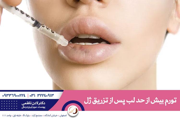 ورم لب بعد از تزریق ژل | تزریق ژل لب در اصفهان