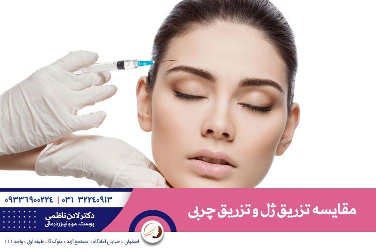 تزریق ژل بهتر است یا تزریق چربی؟   بهترین تزریق ژل در اصفهان