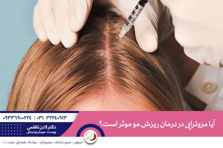 مزوتراپی روشی برای درمان ریزش مو