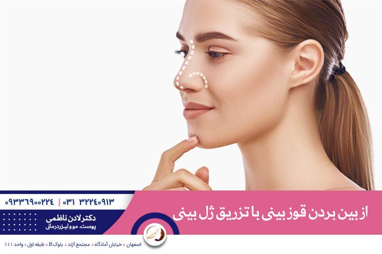 از بین بردن قوز بینی با تزریق ژل بینی