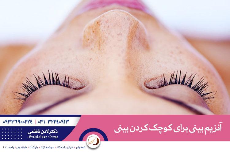 آنزیم بینی برای کوچک کردن بینی