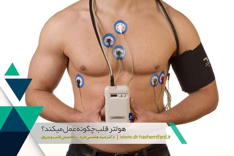 هولتر قلب و انواع آن | هولتر مانیتورینگ قلب | کلینیک بازتوانی قلب اصفهان