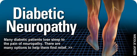 درد پای دیابتی– حقایق و اطلاعات