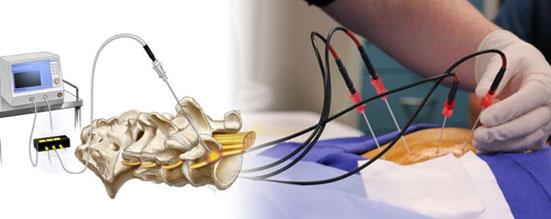 نوروتومی در کلینیک درمان درد دکتر علی نقره کار