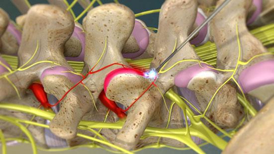 درمان درد گردن در کلینیک دکتر علی نقره کار
