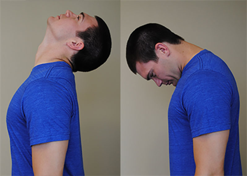 درد گردن درمان، دکتر علی نقره کار