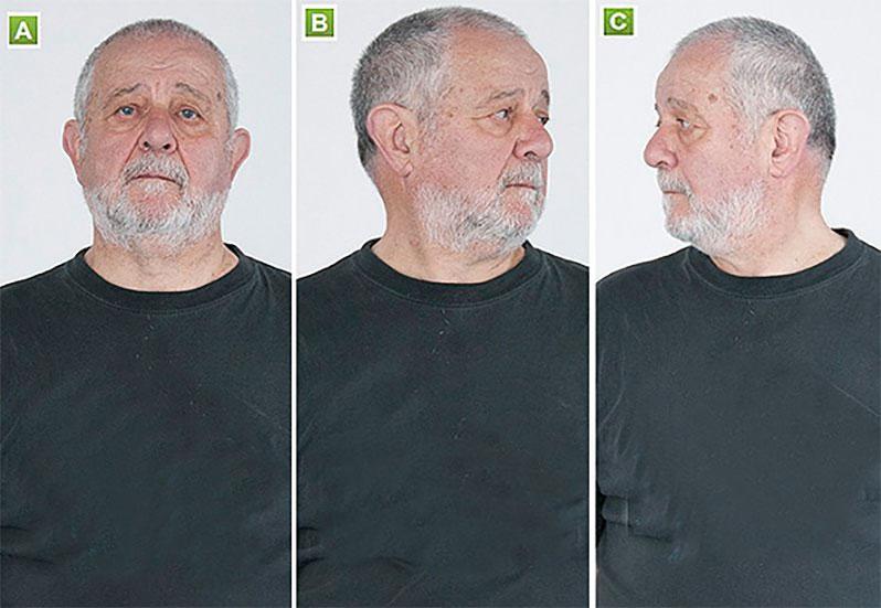 درمان درد مفصل فاست گردن با حرکات کششی