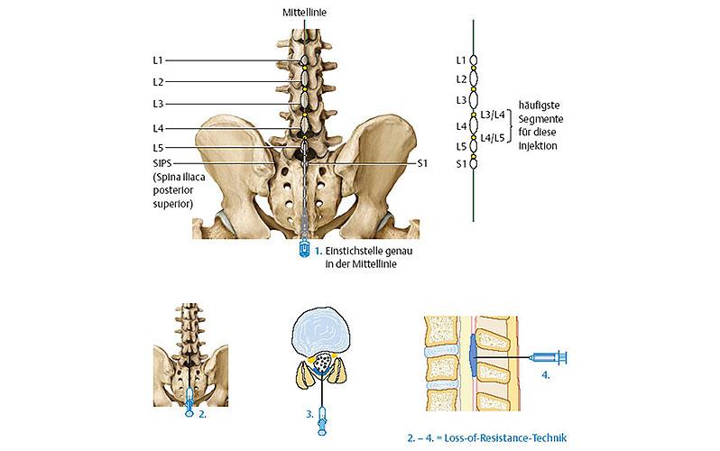 دکتر علی نقره کار، بهبود دردهای ناشی از تنگی کانال نخاعی