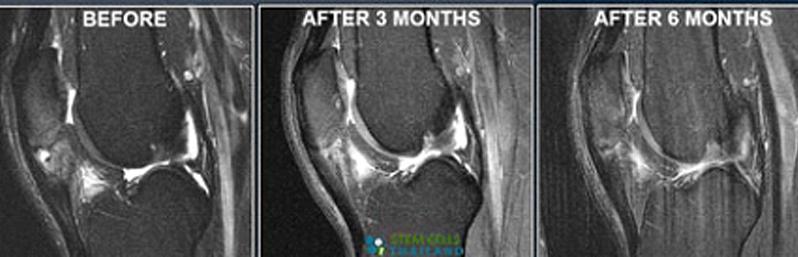 کاهش درد زانو با تزریق پلاسمای غنی از پلاکت