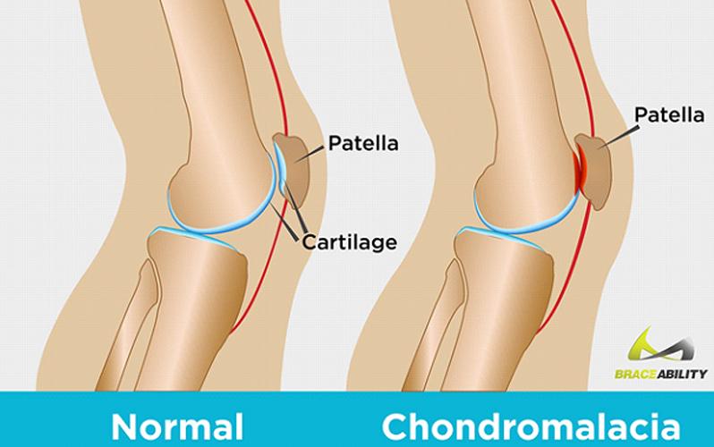 درمان درد کندرومالاسی