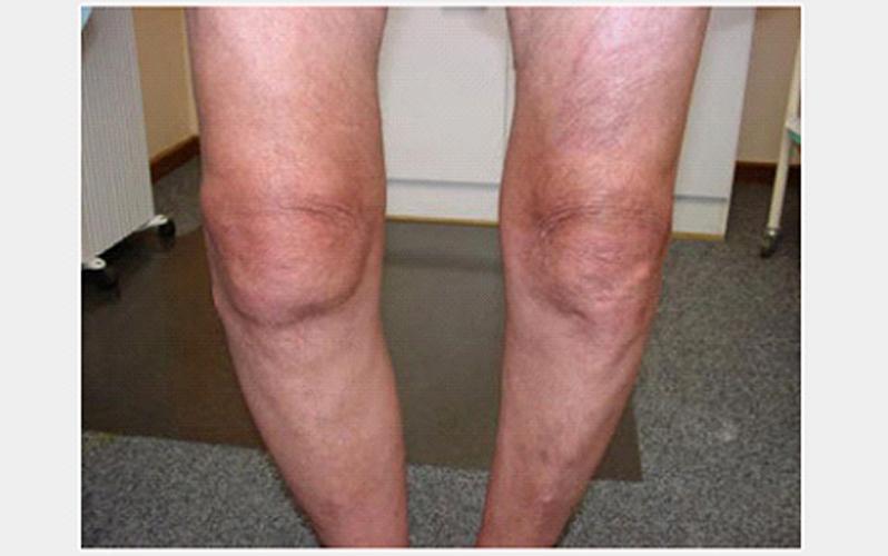 درمان آرتروز استخوانی
