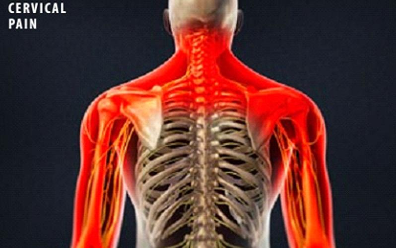 تزریق استروئید در ستون فقرات گردنی