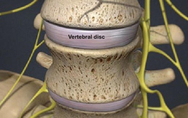 بیماری دژنراتیو چیست
