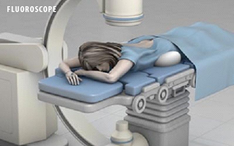 طرز دراز کشیدن بیمار جهت بلوک مفصلساکروایلیاک