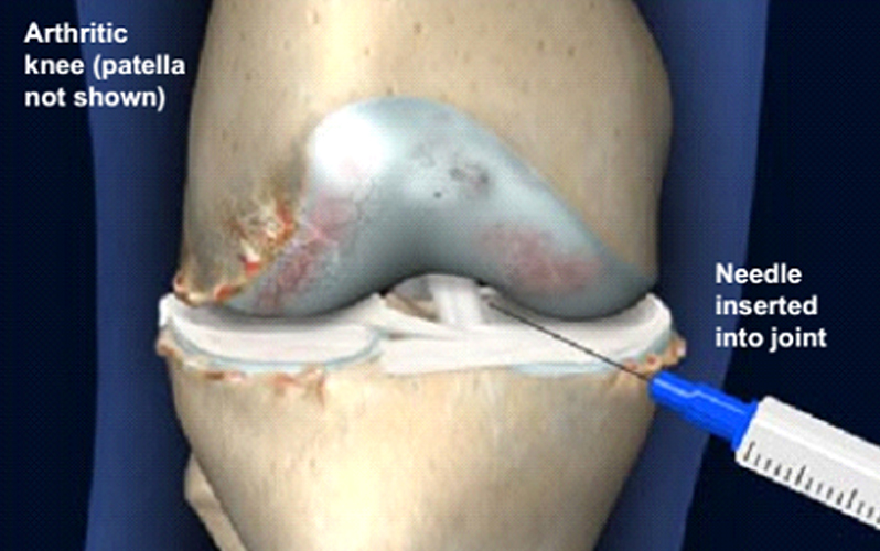 درمان آرتروز زانو با تزریق ژل