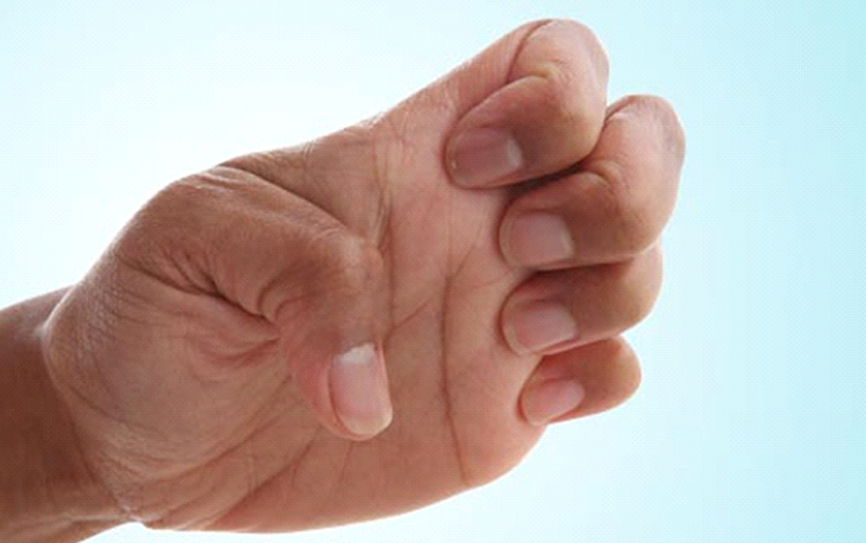 بستن چند مرحله ای دست و بهبود انگشت ماشه ای