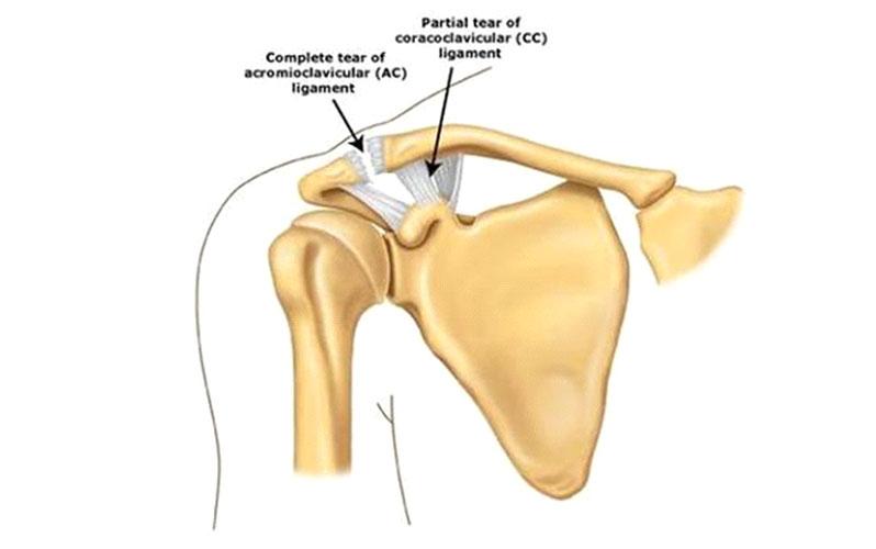درمان درد مفصل شانه
