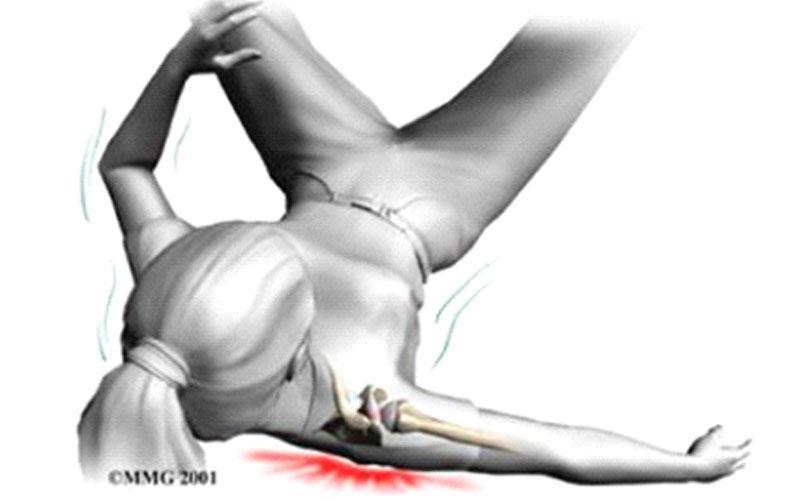 درد مفصل اکرومیوکلاویکول