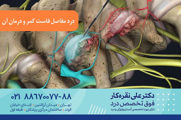 درمان در مفاصل فاست کمر در تهران ، دکتر علی نقره کار