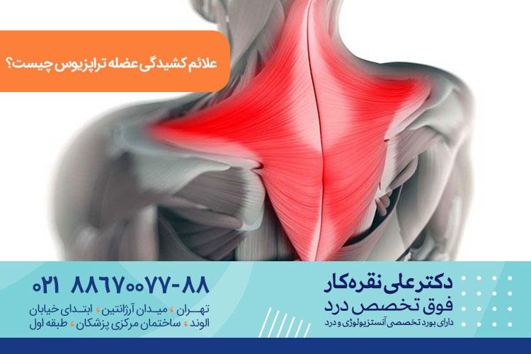 کشیدگی عضله تراپزیوس  یا ذوزنقه ای | کلینیک درد دکتر علی نقره کار
