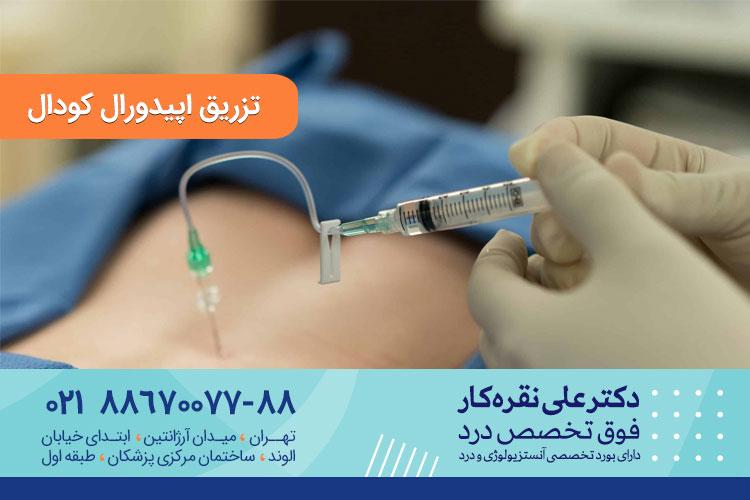 تزریق اپیدورال کودال