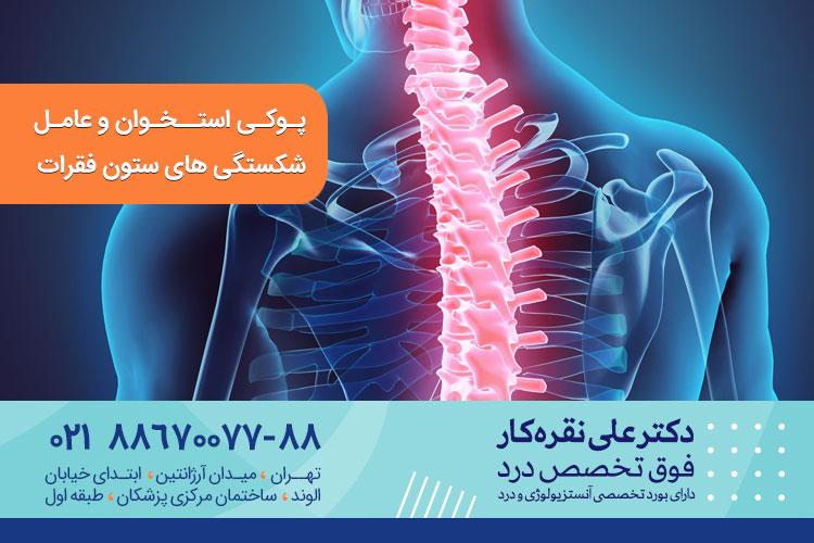 تاثیر پوکی استخوان بر شکستگی ستون فقرات