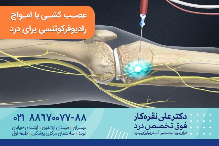 عصب کشی با امواج رادیوفرکوئنسی روشی برای درمان درد