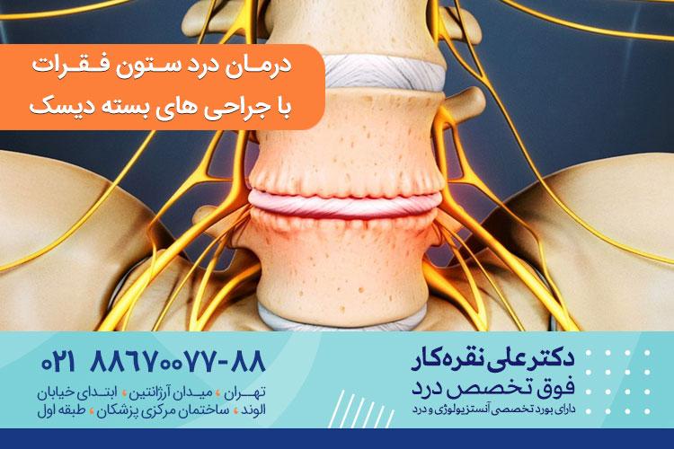 درمان درد ستون فقرات با جراحی بسته دیسک