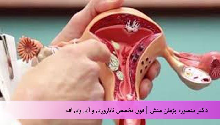 فیبروم  رحمی ( بخش اول )