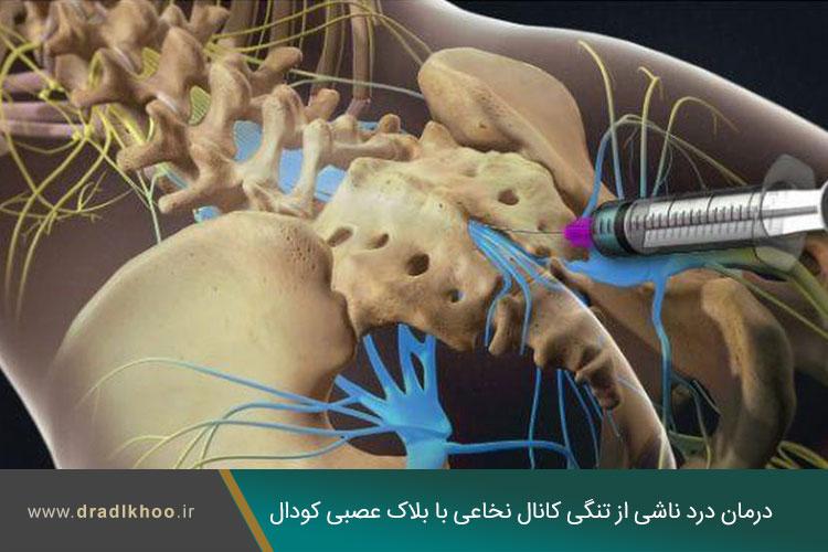 درد ناشی از تنگی کانال نخاعی