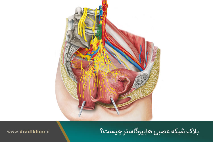 درمان درد لگن با بلوک عصبی