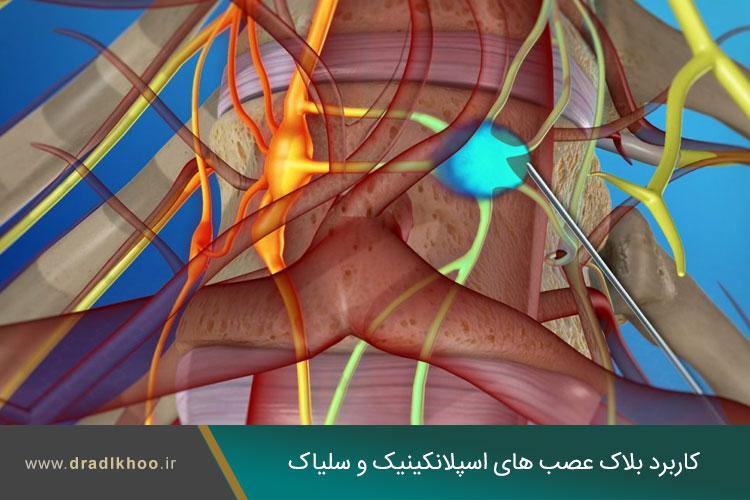 بلاک عصبی اسپلانکینیک و سلیاک