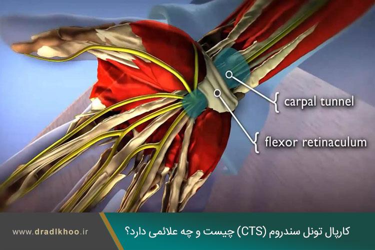 سندرم تونل کارپال مچ دست
