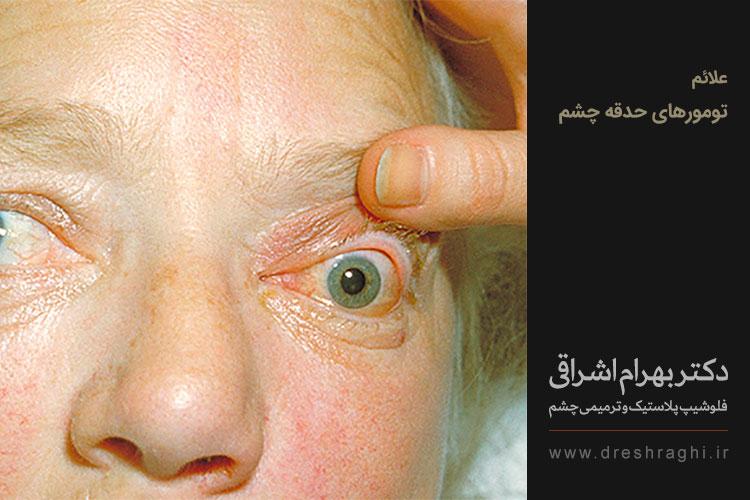 تشخیص تومور حدقه دکتر بهرام اشراقی