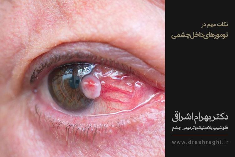 انواع تومور چشم
